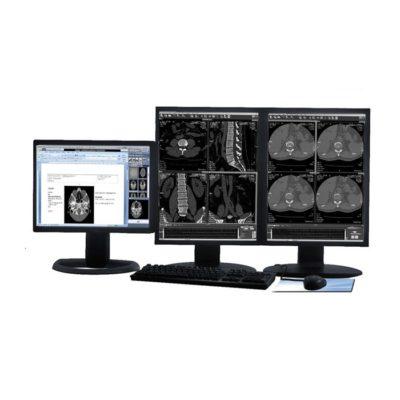 Πρόσκληση Υποβολής Προσφορών με αντικείμενο την ετήσια συντήρηση ολοκληρωμένου πληροφοριακού συστήματος αρχειοθέτησης ιατρικών εικόνων (PACS), ακτινολογικού πληροφοριακού συστήματος (RIS) και εξοπλισμού πληροφορικής του Π.Γ.Ν. Έβρου – Νοσηλευτική Μονάδα Αλεξ/πολης